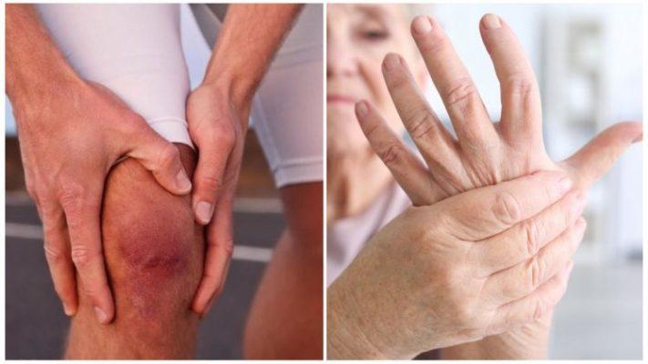 полиартроз - симптомы и лечение